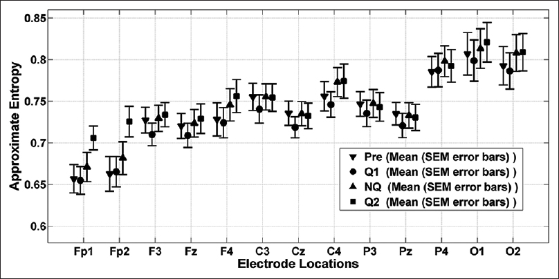 Nonlinear analysis of electroencephalogram signals while listening